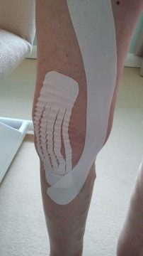 a knee with strapping